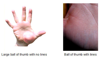 Large ball of thumb with and without lines